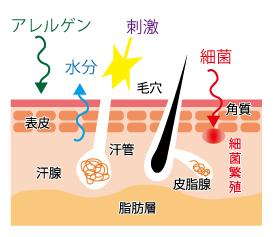 アトピー性皮膚炎<★田中薬局