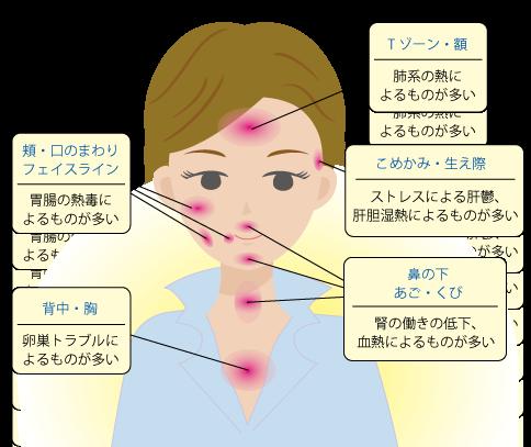 ニキビの発症する部位と内臓のトラブルの関係